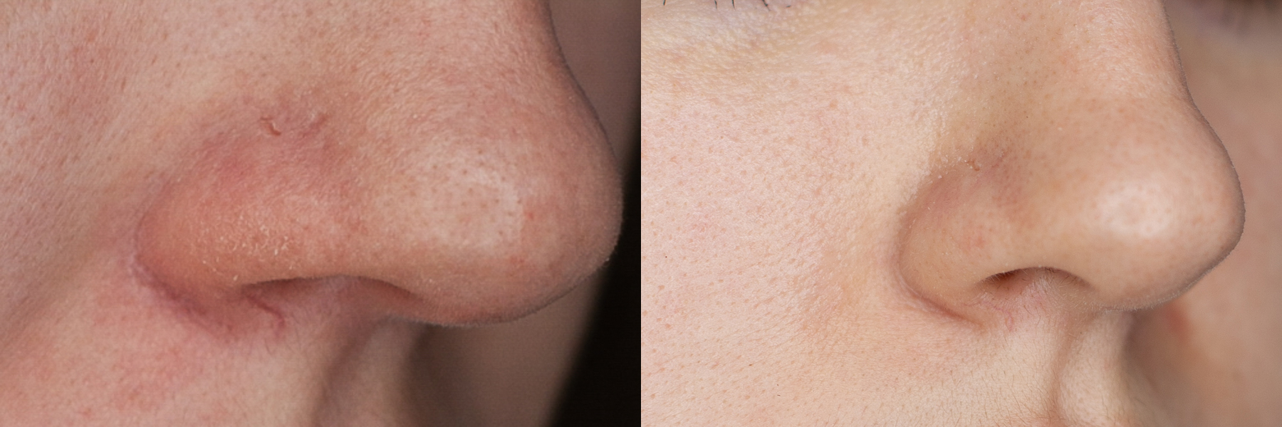 How to remove rosacea? An experiment on the apparatus of BBL